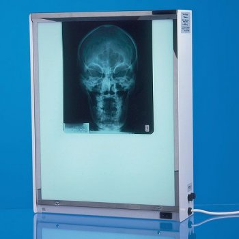 AW Medical Single X-ray viewer 38w x 48h x 10d cm